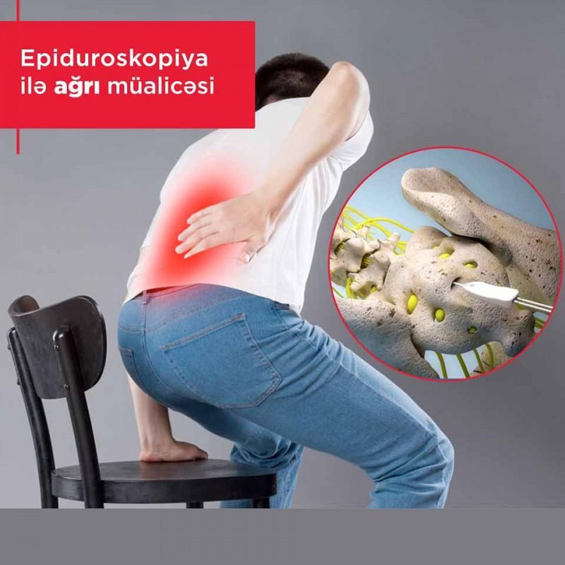Epiduroskopiya ilə ağrı müalicəsi