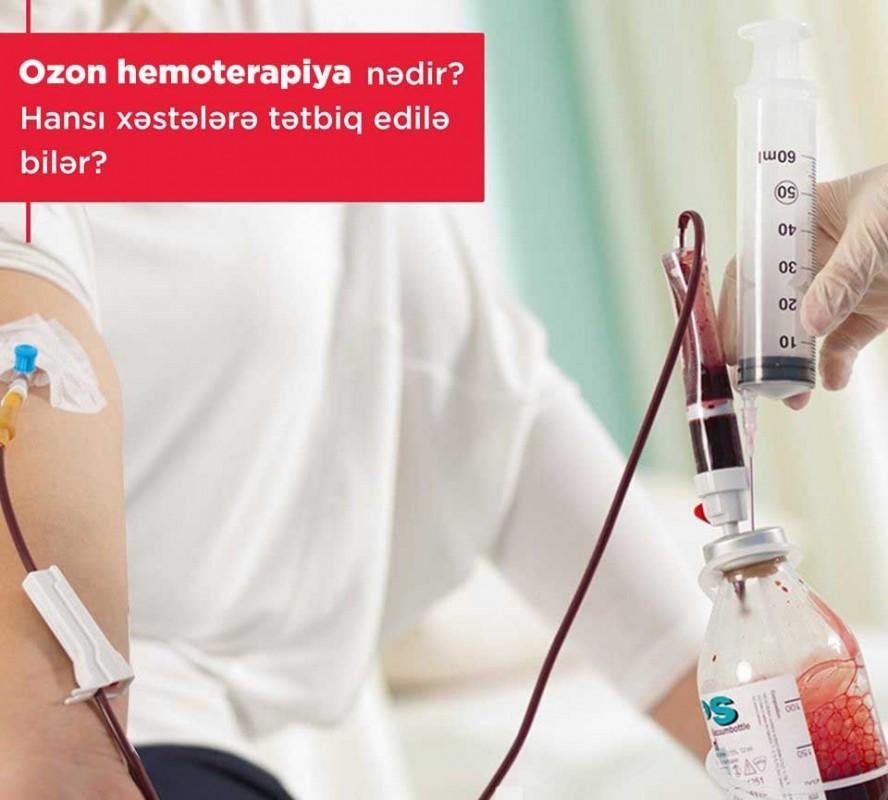 Ozon hemoterapiya